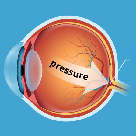 Glaucoma Service