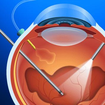 Vitreo-Retina Service